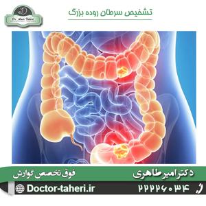 تشخیص سرطان روده بزرگ