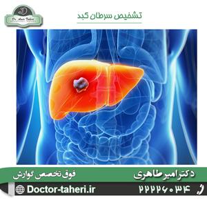 تشخیص سرطان کبد
